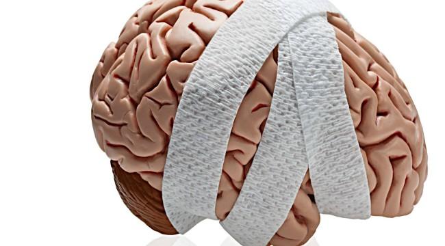 Объем человеческого мозга уменьшается к вечеру
