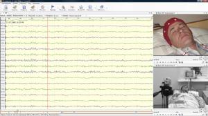 ЭЭГ в диагностике рефлекторных форм эпилепсии